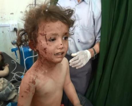 Injured kid after Saudi bombing on Talah, in Sada district, northern Yemen